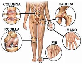 Artrosis y PRP
